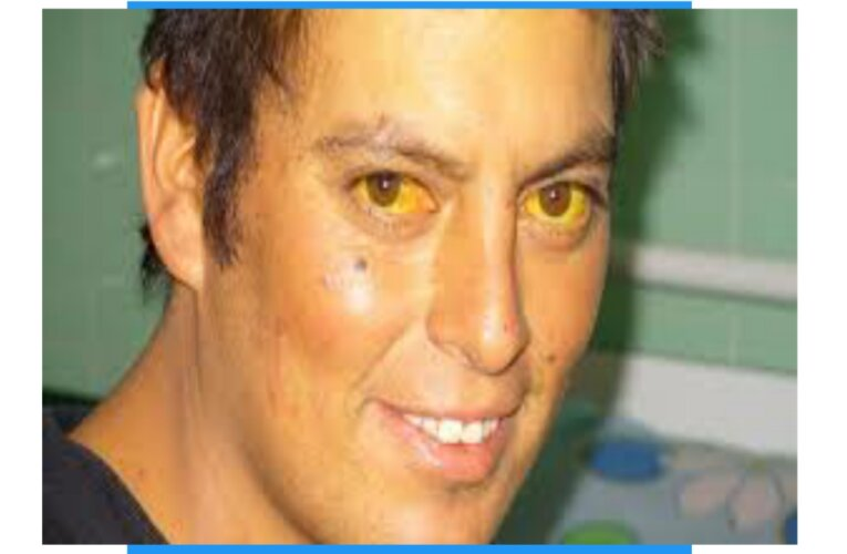 jaundice in eyes