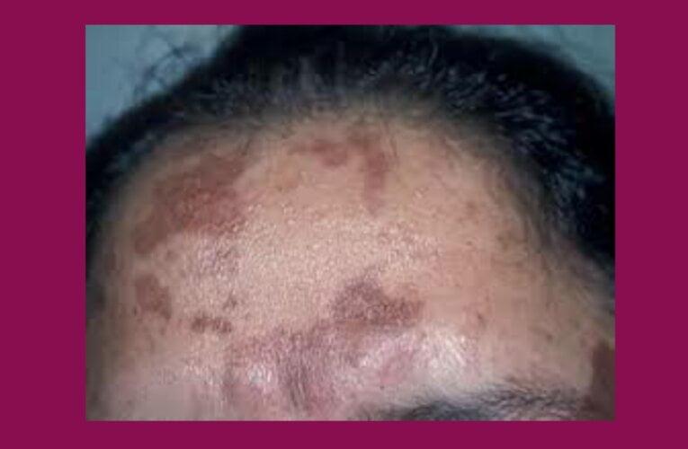 Black spot on skin