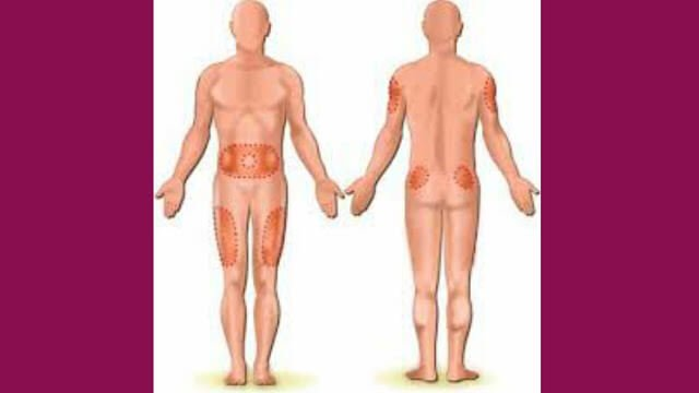 Injection sites for IM