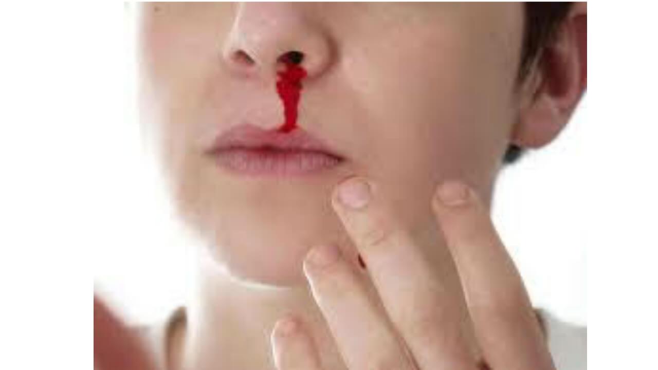 How stop nose bleeding