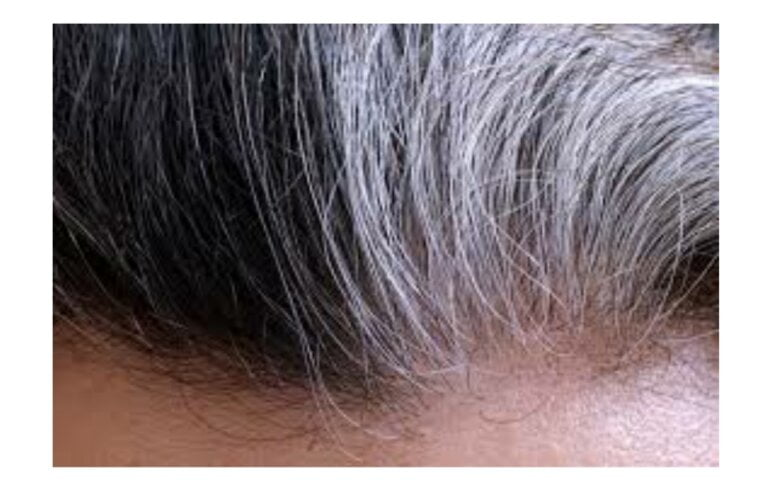 Premature graying of hair