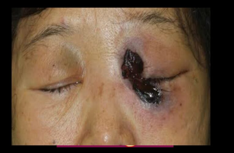 Treatment for mucormycosis – the disease causes 100s of eye removal