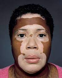 5 important things that you don't know about White patches skin