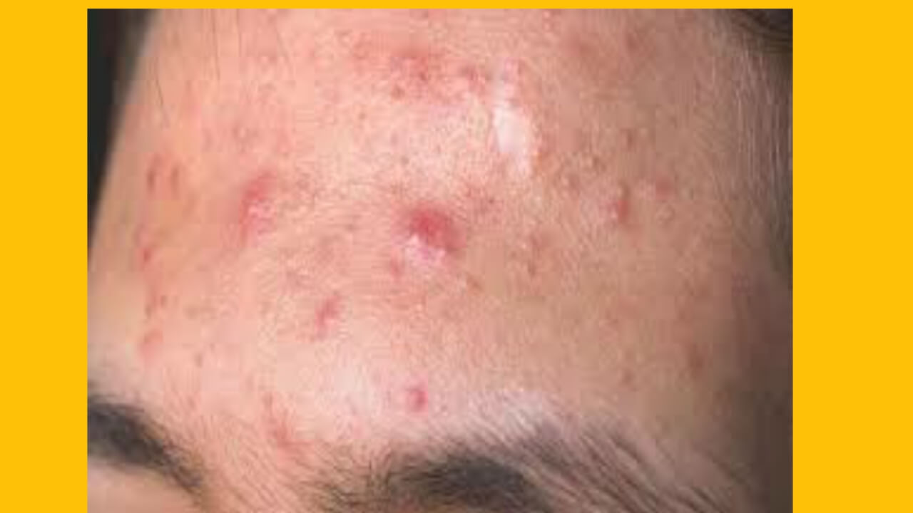 Pimples with pus